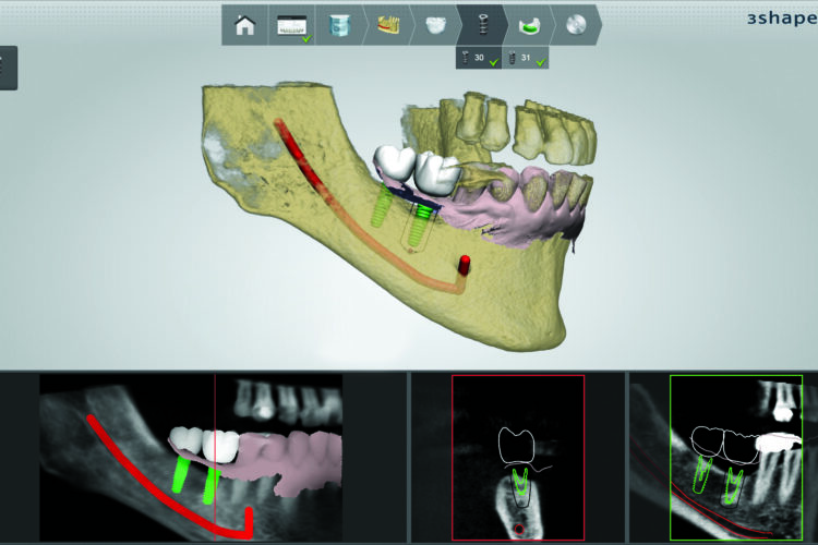 guided implants