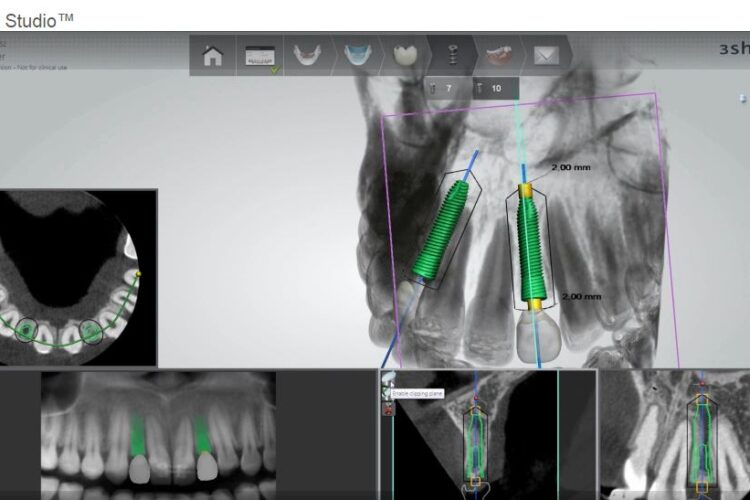 Ρομποτική δοντιών