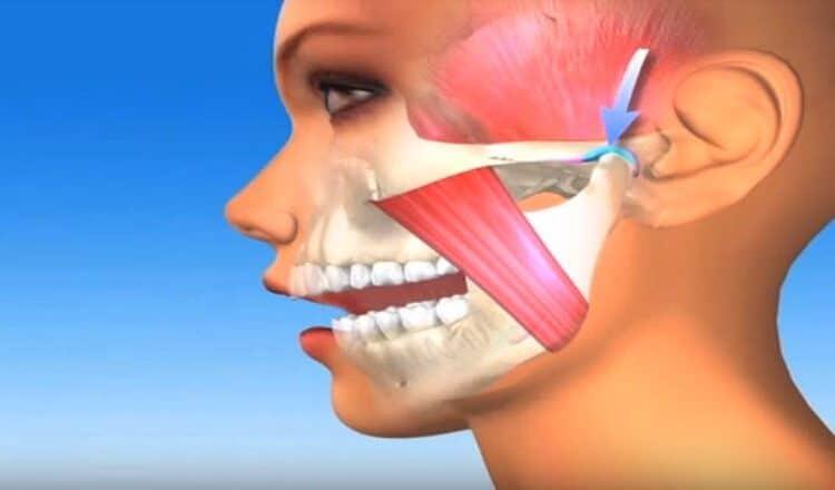 Νάρθηκας σύγκλεισης (TMJ)