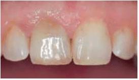 Διαδικασία εσωτερικής λεύκανσης ενδοδοντικά θεραπευμένου δοντιού