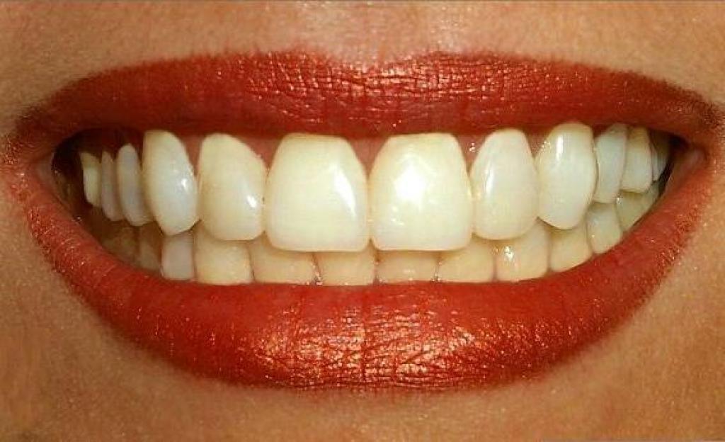 Γιατί κτρινίζουν τα δόντια;