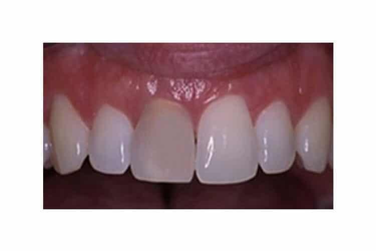 Λεύκανση δοντιών